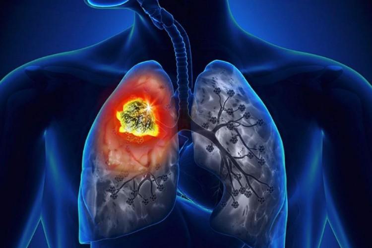 Photo of BiH: Godišnje od karcinoma oboli 10.000 ljudi, od kojih polovina umre