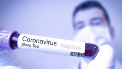 Photo of U Brčkom danas registrovan jedan novi slučaj virusa korona