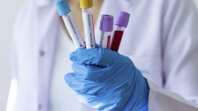 Photo of U Bosni i Hercegovini 318 novozaraženih koronavirusom, preminulo šest osoba