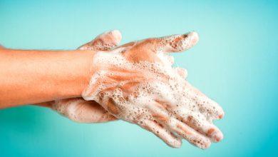 Photo of Zbog čestog pranja ruke pucaju, evo kako se zaštititi