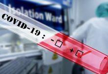 Photo of FBiH: Testirano 279 uzoraka, osam novih slučajeva zaraze