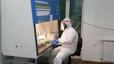 Photo of Iz PCR kabineta do sada izašlo oko 100 uzoraka